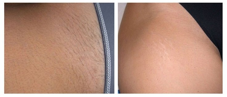 Bikini Before After Laser Hair Removal