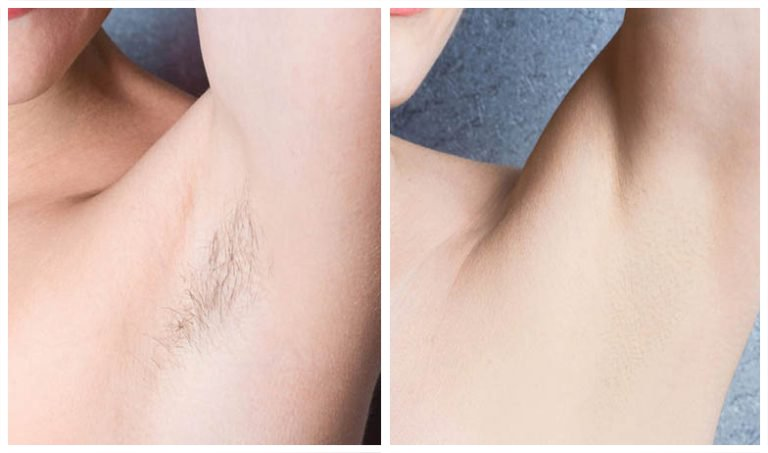 Laser Hair Removal 767 768x453