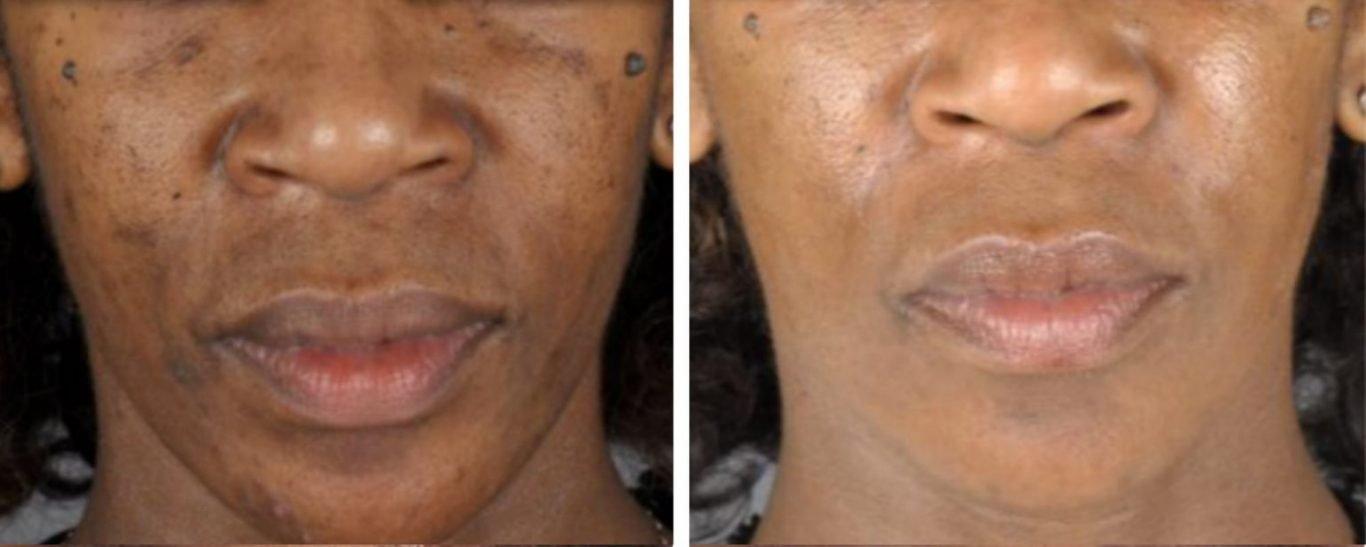 Moda Donna Carbon Peel Facial Treatment London Carbon
