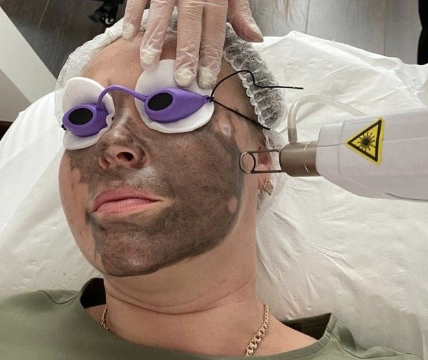 Moda Donna Carbon Peel Facial Treatment London Carbon Peel 1