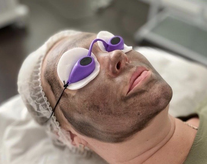 Moda Donna Carbon Peel Facial Treatment London Carbon Peel