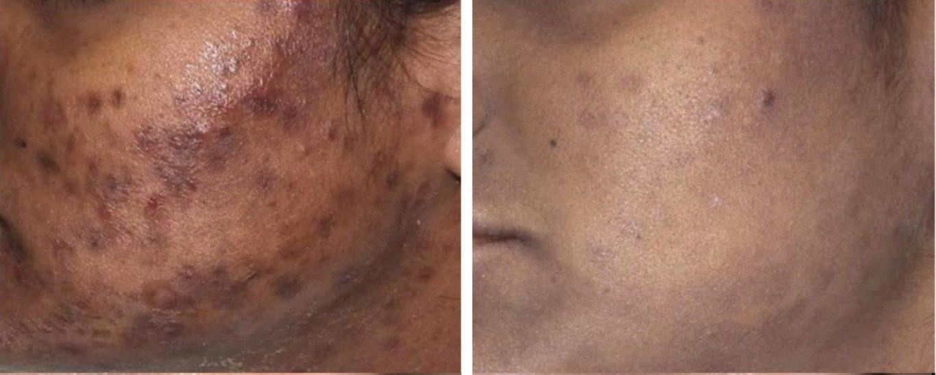 Moda Donna Carbon Peel Facial Treatment London Carbon2