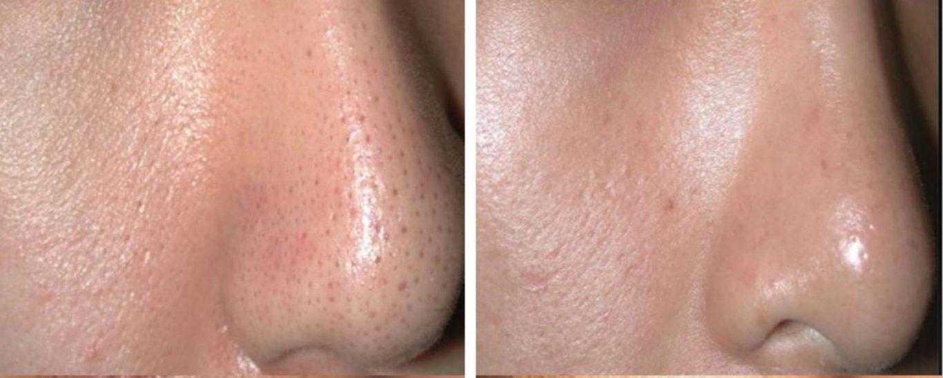 Moda Donna Carbon Peel Facial Treatment London Carbon3